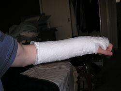 Orthopedic Cast